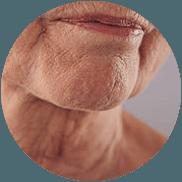 saggy-neck