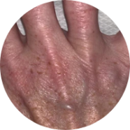 Dr Camilla Hill Website Skin Boosters for hands and neck